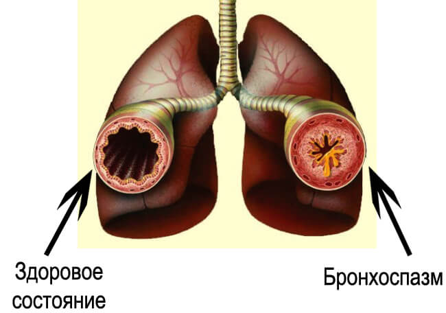 Как правильно применять кардиомагнил