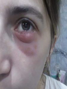 Тауфон — глазные капли: действие препарата, показания и противопоказания к применению, способ применения, меры безопасности, передозировка, побочные эффекты