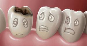 Фтор польза и вред I Можно ли пользоваться зубной пастой с фтором