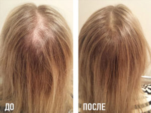 Никотиновая кислота - применение, показания, инструкция