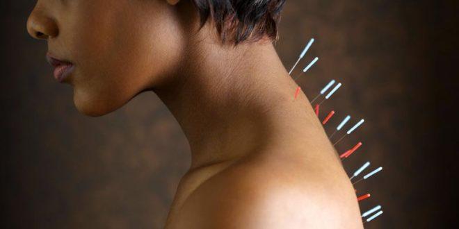 Иглоукалывание для похудения в курске