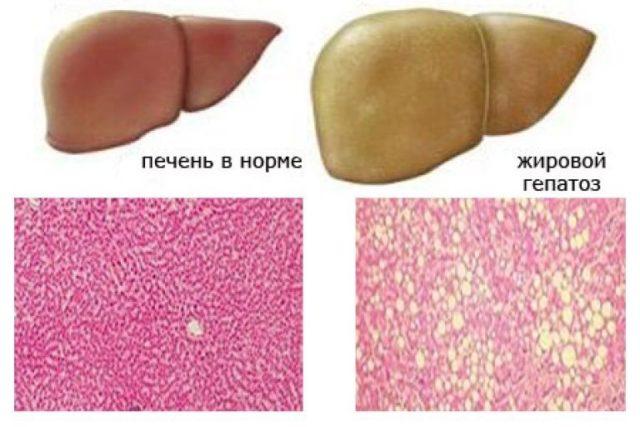 Как лечить ожирение печени и поджелудочной железы