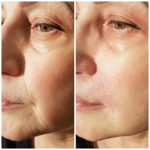 Гиалуроновая кислота в носогубные складки – особенности коррекции уколами, выбор препарата