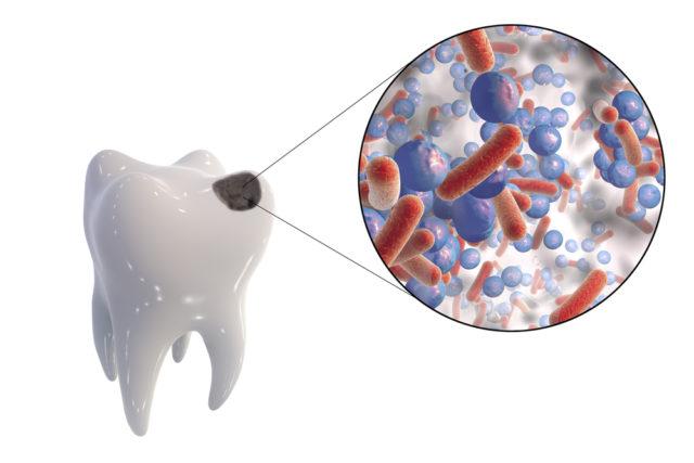 Полезные продукты для зубов и десен: какие нужны для укрепления эмали у взрослых, детей